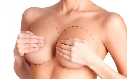 Cirugía.Prótesis mamas