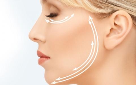 Cirugía.Lifting facial