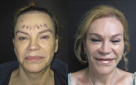 Cirugía.Frente y Órbita