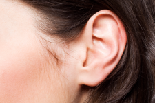 Cirugía.Otoplastia (orejas)