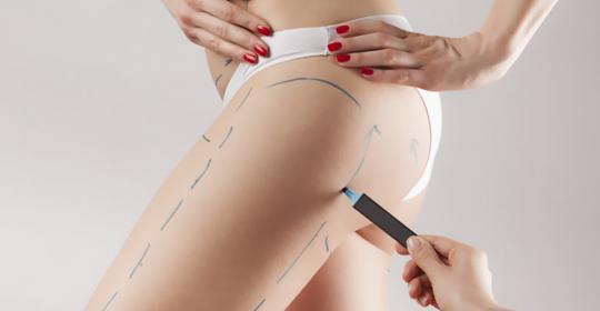 ¿Cómo mantener los resultados de una liposucción?